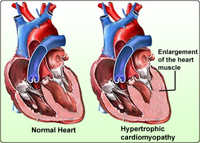 cardiomyopathy - dilated - hypertrophic and restrictive types, Skeleton