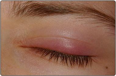 Eyelid Problems Chalazion