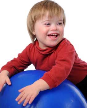 the causes symptoms diagnosis and management of down syndrome Down syndrome - an easy to understand guide covering causes, diagnosis, symptoms, treatment and prevention plus additional in depth medical information.