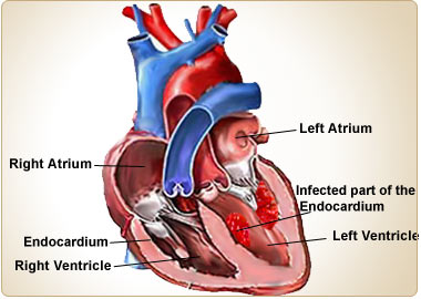 Infective Endocarditis-Causes-Symptoms-Diagnosis-Complications ...
