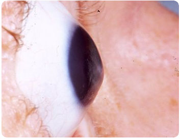 keratoconus causes symptoms signs diagnosis and Keratoconus is a degenerative disease of the cornea that causes it to gradually thin and bulge into a cone-like shape this shape prevents  signs and symptoms  keratoconus is usually diagnosed when patients reach their 20's for some.