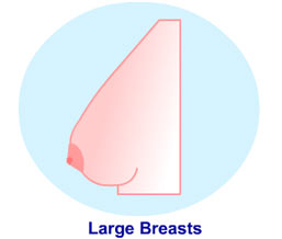 The Large Breast