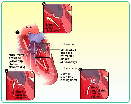 a description of cause and effect of heart defect called mitral valve prolapse Endocarditis and mitral valve prolapse: any valvular heart disease  which may or may not be cause-and-effect.