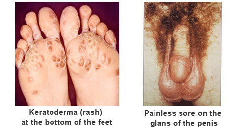 ayurvedic oil for psoriasis