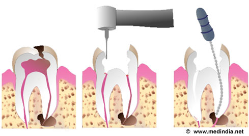 Root Canal Treatment - Print
