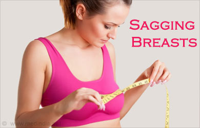 The Sagging Breast