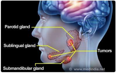 Salivary Gland Cancer Causes Types Symptoms Diagnosis