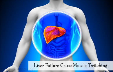 Muscle Twitching | Fasciculations - Causes, Symptoms, Diagnosis