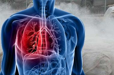 Asbestosis Wikipedia Español
