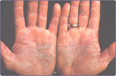 Skin Disease Knowledge Of Dermatitis Can Help You In Effectively Dealing With It
