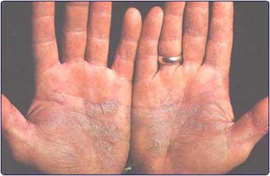 Skin disease/ Dermatology - Disorder - Problems - Cancer