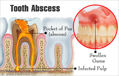 Tooth Abcess : Causes Symptoms Complications Picture ...  |Abscessed Tooth Complications Signs