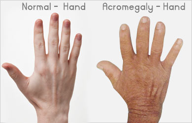 Acromegaly - Causes Symptoms Complications Diagnosis Treatment ...