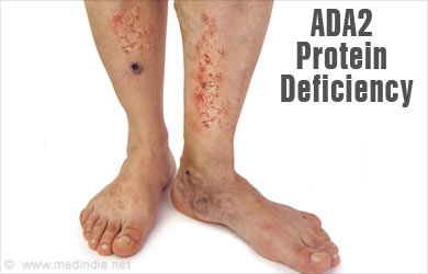 protein deficiency symptoms Protein deficiency can cause white bands or brownish spots on the nails hair loss dry, sparse hair that falls out easily or changes color or texture is a sign of low protein intake.