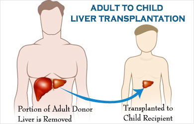 The adult lung transplants can recommend