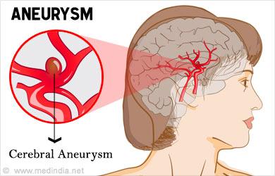 aneurysm - types, causes, symptoms, diagnosis, treatment, prevention, Human Body