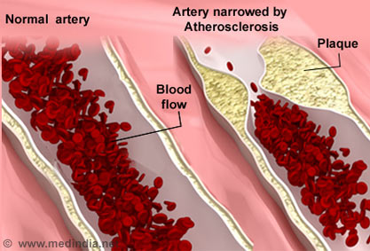symptoms and causes of arteriosclerosis Symptoms thoracic aortic aneurysms often grow slowly and usually without symptoms,  this causes bleeding into and along the aortic wall and, in some cases,.