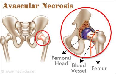 Hasil gambar untuk avascular necrosis