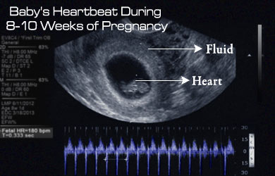 Starting at week 5 the fetal heart will accelerate at a rate of 3.3 beats  per day for the next month.Antenatal fetal heart rate (FHR) patterns were  screened ...
