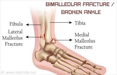Bimalleolar Fracture Broken Ankle Causes Symptoms Diagnosis