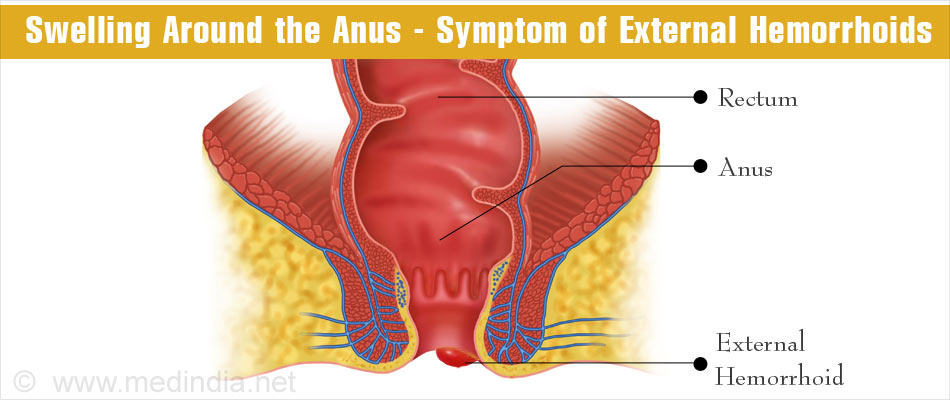 how to get rid of piles during pregnancy