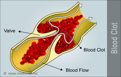 how to get rid of blood clots in lungs naturally