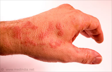 red rash - hot to touch - Dermatology - MedHelp