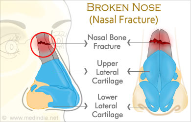 broken nose nasal fracture age groups and types symptoms rh medindia net