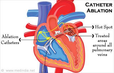 Atrial Fibrillation Causes Symptoms Diagnosis