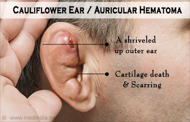 Image result for cauliflower ear causes, symptoms & treatments