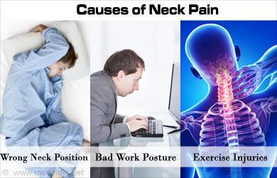 Neck Pain Stiff Neck Cervicalgia Causes Symptoms