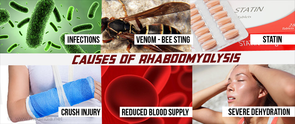 Causes of Rhabdomyolysis