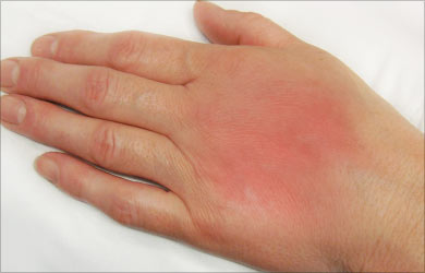 the causes diagnosis prognosis and treatment of cellulitis Cellulitis is a common infection of the skin and the soft tissues underneath it happens when bacteria enter a break in the skin and spread the result is infection, which may cause swelling, redness, pain, or warmth.