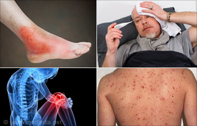 Cellulitis - Causes Symptoms Diagnosis Treatment How to Avoid