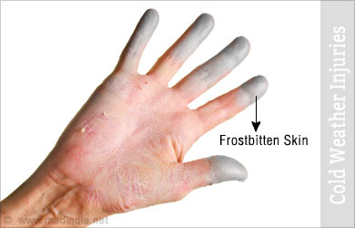 images 7 Cold Weather Skin Problems and How To FixThem