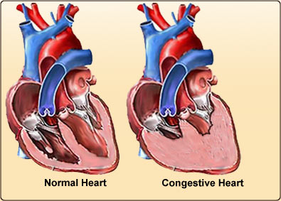 What Is New In Congestive Heart Failure