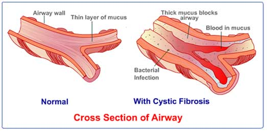Signs Symptoms And Complications Of Cystic Fibrosis