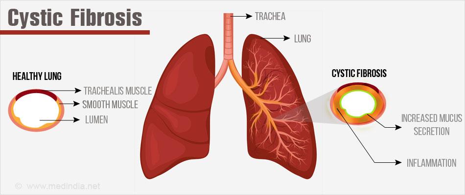 Cystic Fibrosis - Symptoms, Causes, Diagnosis, Treatment ...