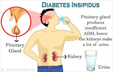Kết quả hình ảnh cho Diabetes Insipidus
