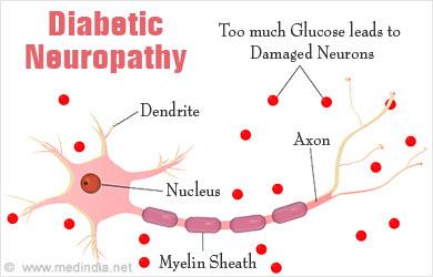 diabetic polyneuropathy