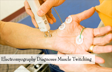 muscle twitching | fasciculations - causes, symptoms, diagnosis, Skeleton