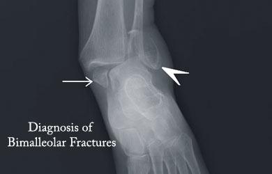 [Imagem: diagnosis-of-bimalleolar-fracture.jpg]