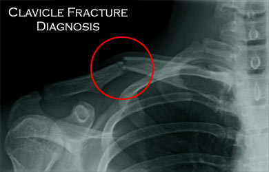 Xray Broken Arm Clavicle Fracture / Br...