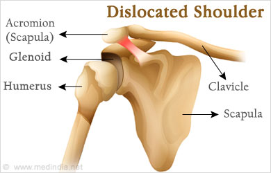how to set a dislocated shoulder