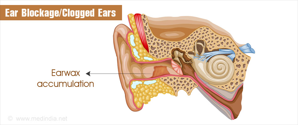 Ear Blockage Clogged Ears Causes Symptoms Diagnosis And Treatment
