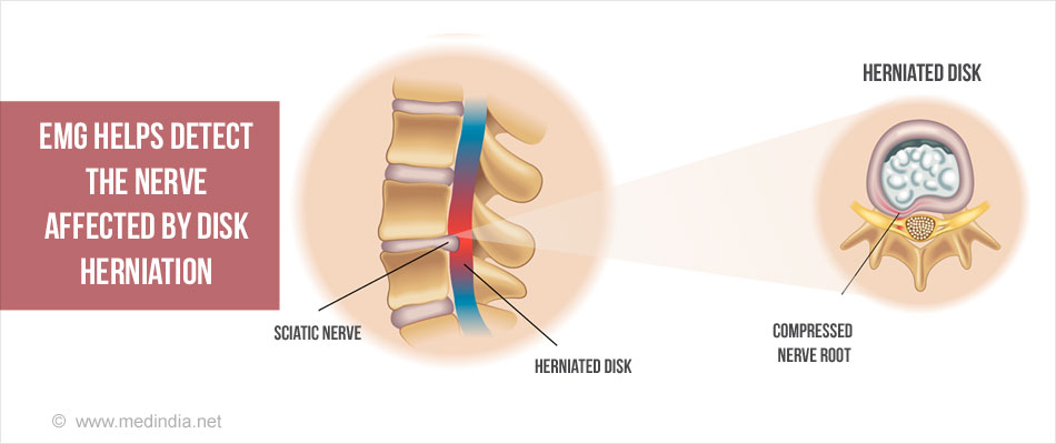EMG Helps Detect Herniated Disk in the Spine