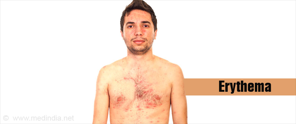 What is erythema