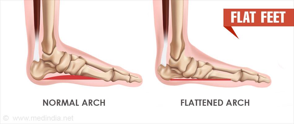 Flat Feet | Pes Planus - Causes, Symptoms, Diagnosis, Treatment