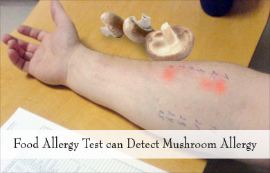 List of Synonyms and Antonyms of the Word: mushrooms allergic