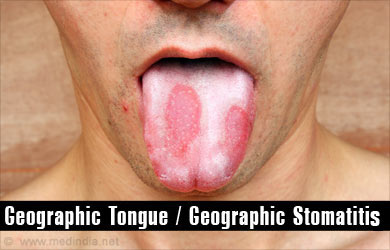Oral sex and geographic tongue